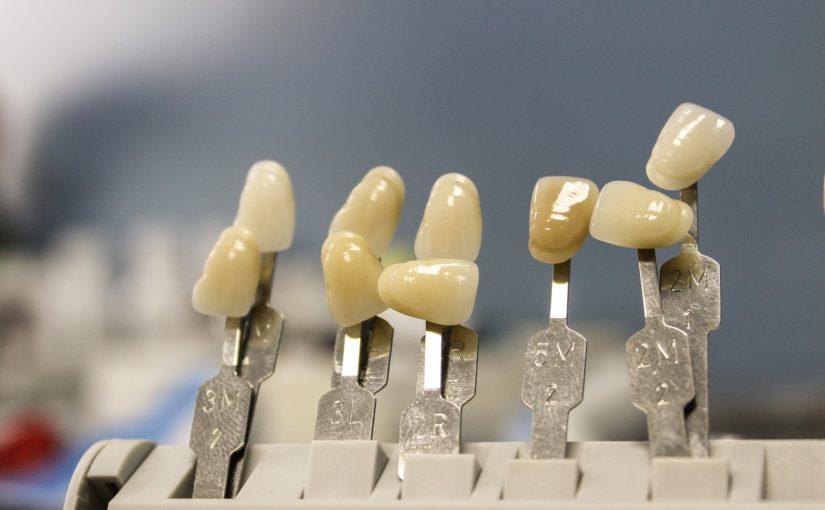 Przepiękne zdrowe zęby także świetny uroczy uśmieszek to powód do dumy.