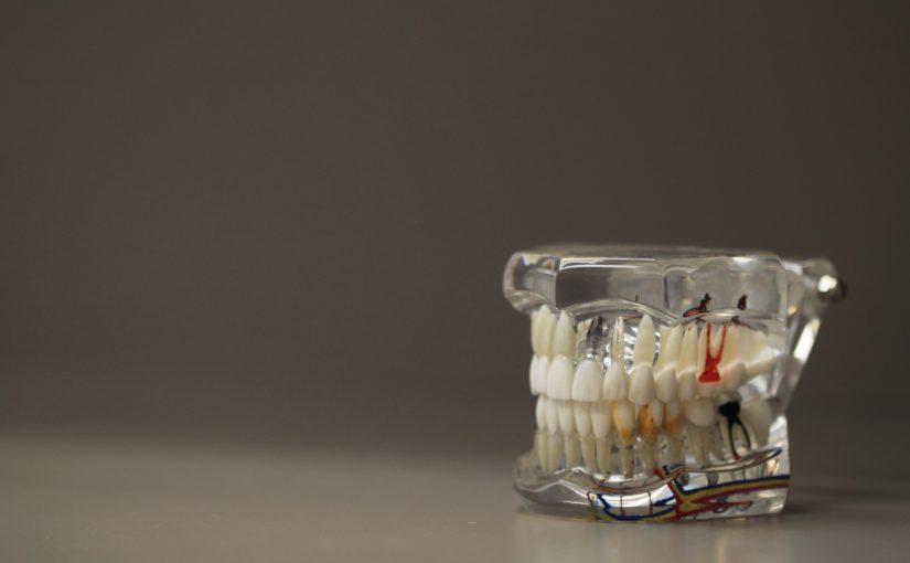 Zła droga żywienia się to większe ubytki w ustach natomiast także ich zgubę